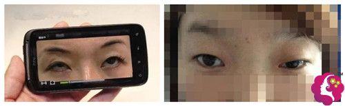 失敗 眼瞼下垂 手術