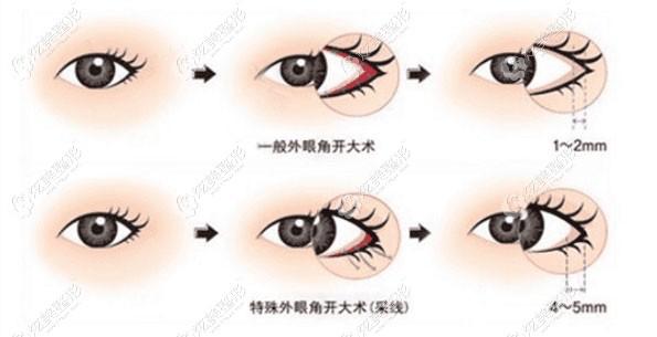 外眼角并不是开的越大越好,通常选择开2-3mm