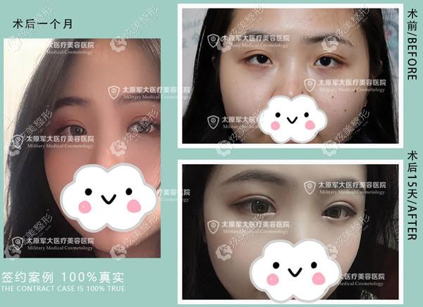 杨俊斐双眼皮修复案例