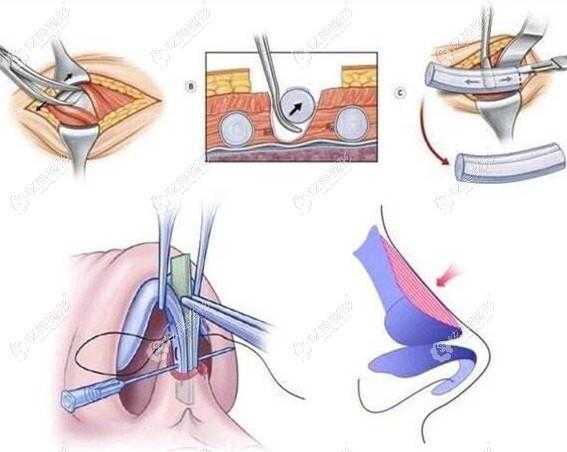 任正义医生做肋骨鼻综合手术过程