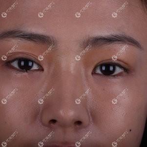 冯守运为我修复双眼皮3个月后,不对称的三眼皮没了