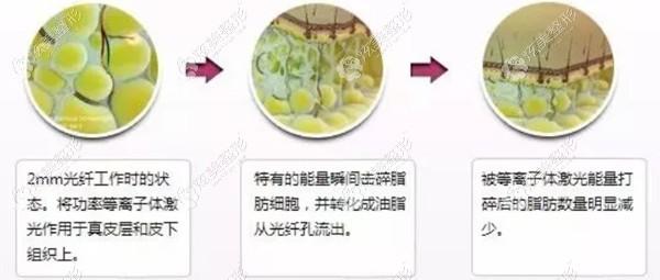 光纤溶脂手术过程
