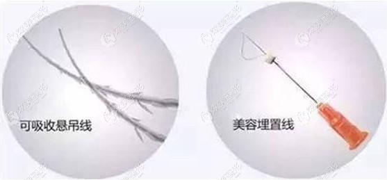 面部埋线采用的可吸收和不可吸收的线材