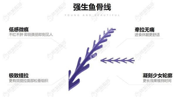 强生蓝钻鱼骨线