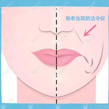 蓝钻鱼骨线和悦升线哪个改善三级法令纹的效果更好