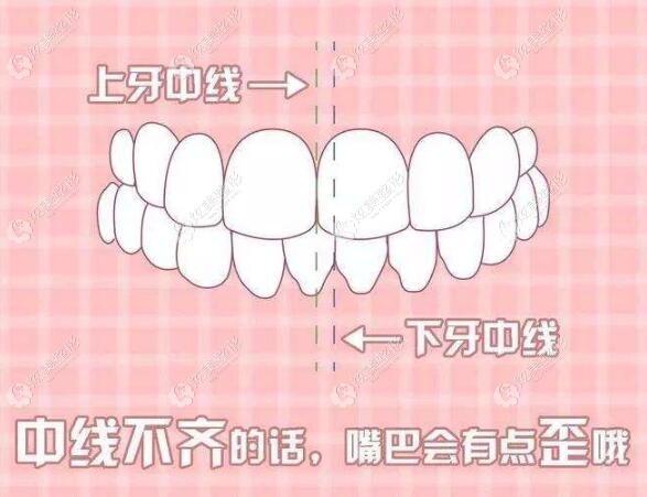 骨性偏颌的主要特征