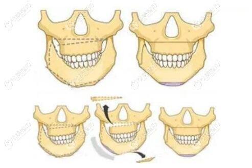 较重的偏颌只能通过正颌手术矫正