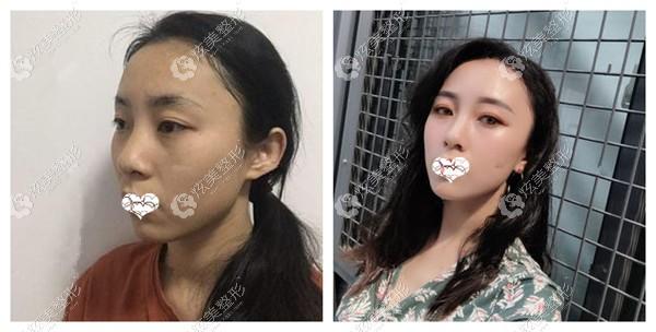 曾举医生做脂肪填充全脸效果对比