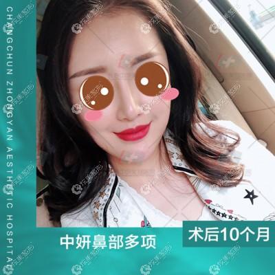 顾客到长春中妍做半肋软骨+晶彩假体鼻修复效果