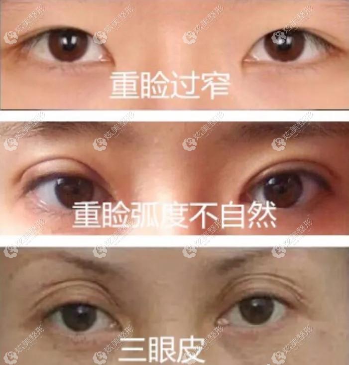 常见的双眼皮失败症状