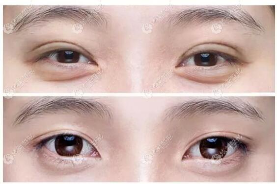 西安叶子修复假大宽双眼皮前后对比照