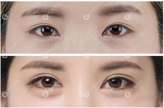 西安叶子修复双眼皮太窄,二次双眼皮案例