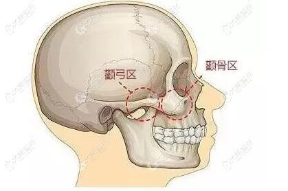 面部解剖图,颧骨和颧弓都属于一个颧骨体