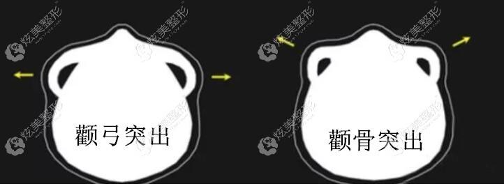 颧骨突出和颧弓突出的不同区别