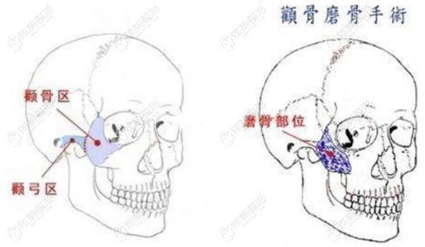 颧骨磨骨降低术原理