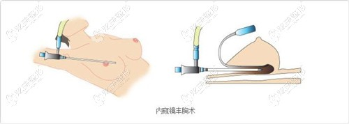 内窥镜双平面隆胸的手术原理