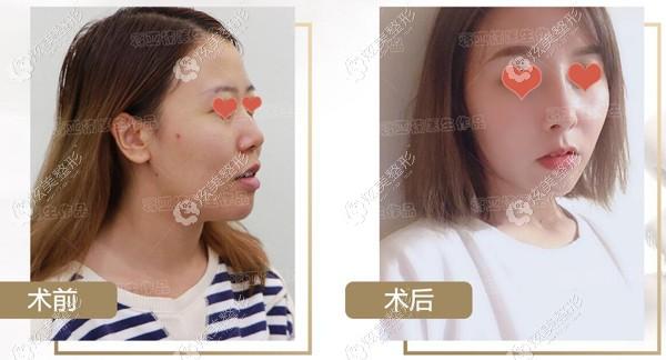 肋软骨鼻综合图片对比