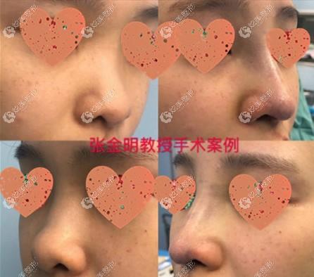 张金明医生鼻畸形歪斜修复案例