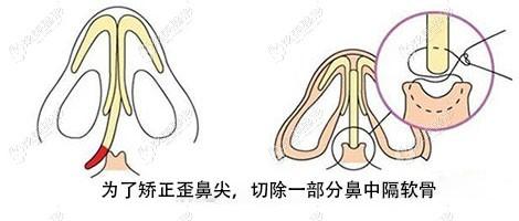 张金明教授做鼻畸形歪斜修复手术