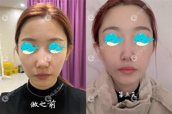 济南海峡fotona 4D真人案例初体验:轻度法令纹没了