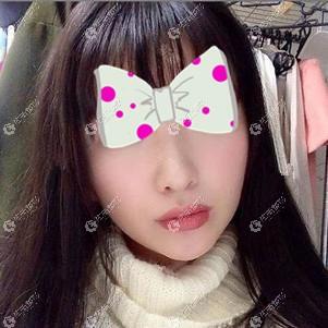 在北京美清做了埋线提升手术后除皱效果明显