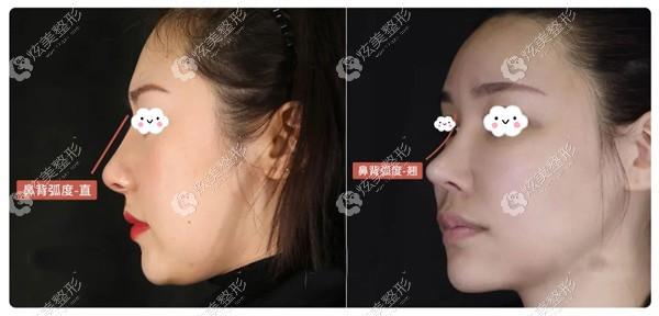 直鼻和翘鼻的案例区别