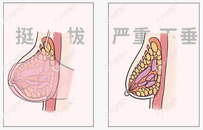 有谁做过乳房下垂矫正?北京韩啸人工韧带提升得多少钱