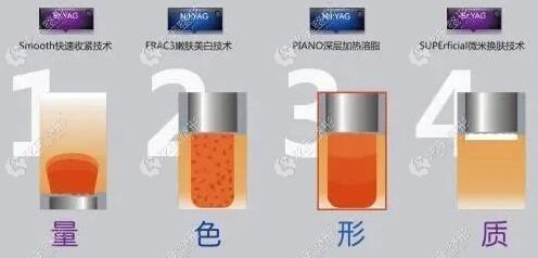 Fotona4D Pro能量更高
