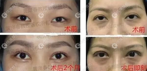 黄泽春医生修复失败双眼皮