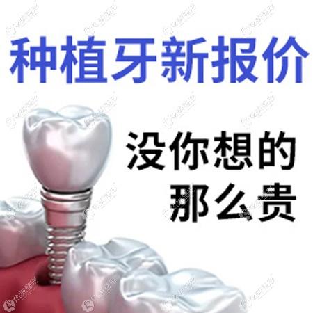 北京宣武牙管家的种植牙多少钱