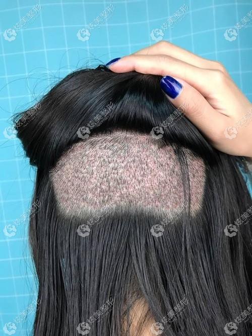 剃发植发可能术后出现的恢复尴尬期