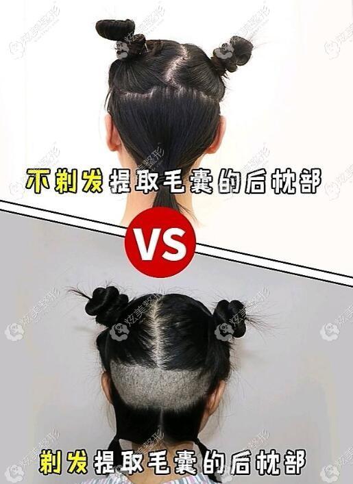 剃发和不剃发植发的区别