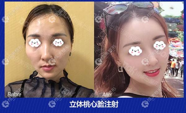 给你看:云南铜雀台自体脂肪填充桃心脸50ml的案例效果