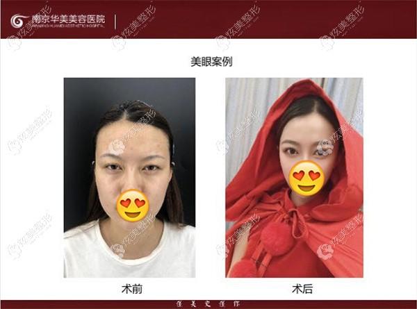 王医生做双眼皮效果前后对比图g