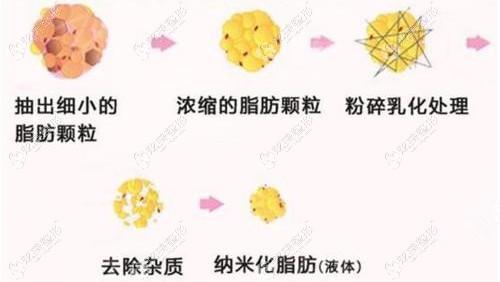 西宁韩美做纳米脂肪填充面部过程