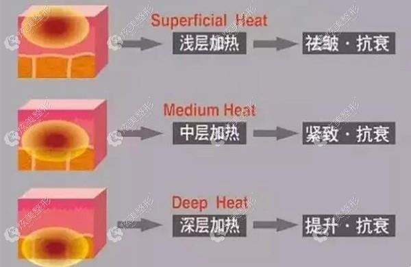 热玛吉和既塑3d针对不同的皮肤层次