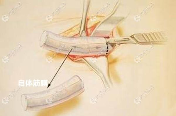 自体筋膜隆鼻是从哪里取的呢