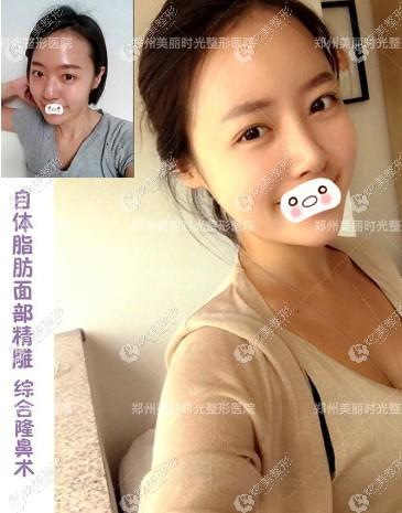 在郑州美丽时光做脂肪填充面部+鼻综合案例