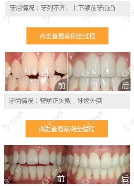 北京西尔口腔的牙齿矫正案例