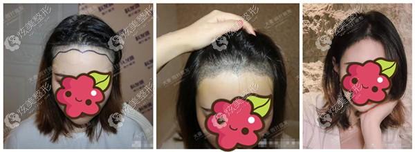 武汉大麦发际线微针植发案例