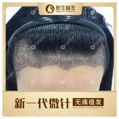 广州越秀区新生毛发医院用3d技术种植一次发际线多少钱