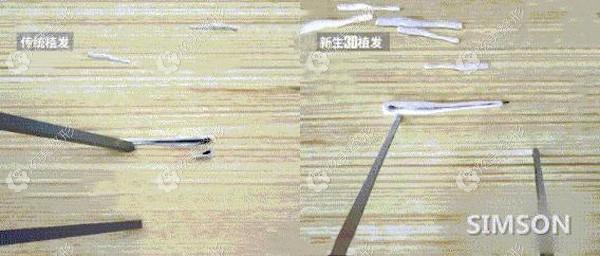 采用显微技术分离毛囊组织