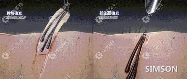 新生植发3d立体植入毛囊单位