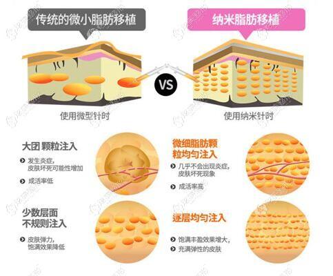 纳米脂肪移植的过程