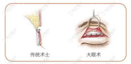 林忠泵医生采用分层缝合技术让双眼皮5天能拆线