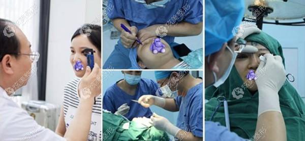 黄泽春医生做眼修复的经验丰富