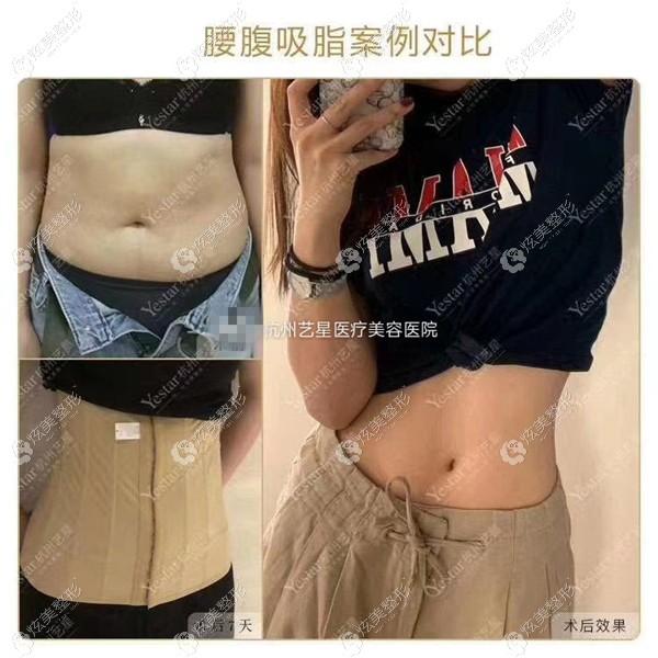 杭州艺星腰腹吸脂对比案例