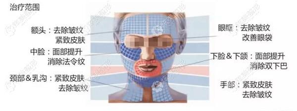 BTL脂肪刀可以操作的面部部位