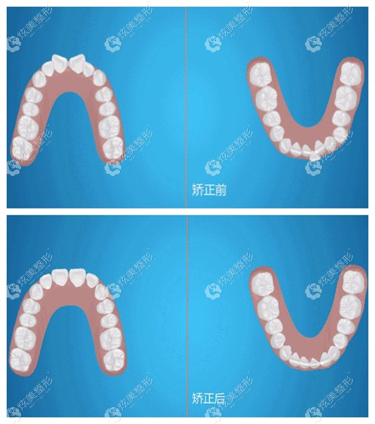 友好口腔做隐形牙齿矫正前后对比