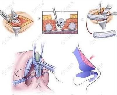 呼和浩特张高 贵整形做半肋鼻过程